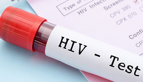 Helping Seniors Manage HIV in Waterloo, CAN